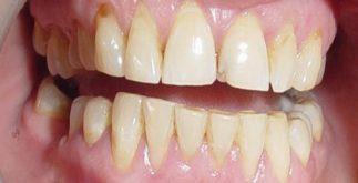 diş lekelerine çözüm, diş lekelerinden kurtulma, diş lekeleri nasıl giderilir