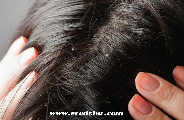 saç derisi hassasiyeti, saç derisindeki hassasiyetin nedenleri nelerdir, saç derisi hassasiyetini giderme