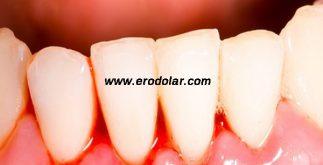 diş eti kanama nedeni, diş eti neden kanar, diş etlerinde kanama neden meydana gelir