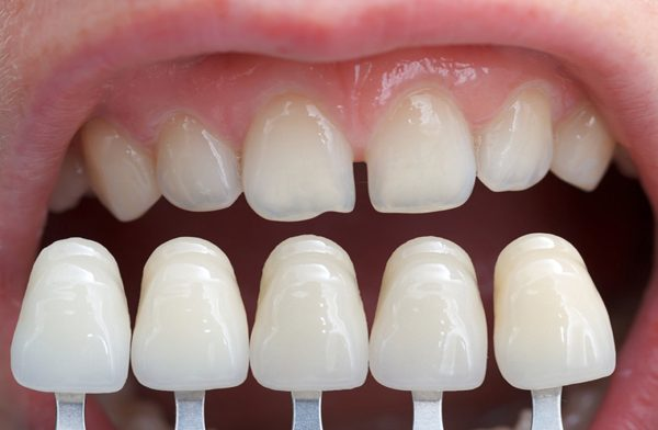 lamine diş yaptırma, lamine dişin diğer dişlerden farkı, lamine diş nasıl yapılır