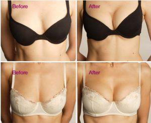 doğal göğüs estetiği, doğal göğüs estetiği yapımı, göğüs estetiği ameliyatı