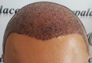 saç ekim doktoru, en iyi saç kimi yapan doktorlar