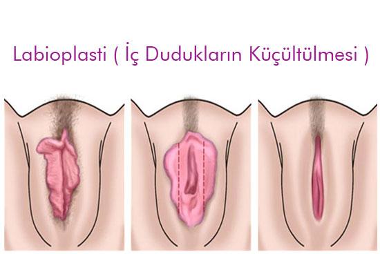 vajina daraltma, vajina estetiği, cajina daraltma estetiği yapımı