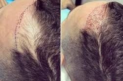 saç kaybını durdurma, saç dökülmesini önleme
