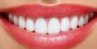 lamine diş, lamine diş fiyatları, lamine diş fiyatları ne kadar