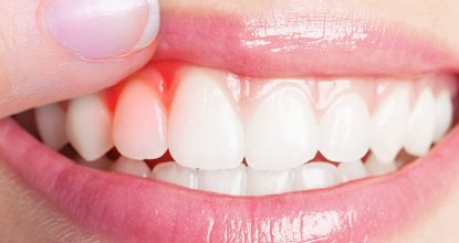 diş eti çekilmesi, diş eti neden çekilir, diş eti çekilme nedenleri neler