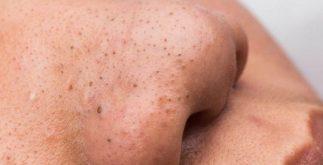 siyah nokta temizliği, doğal yollarla siyah nokta temizleme, doğal siyah nokta tedavisi