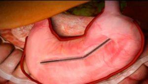 mide küçültme ameliyatı, mide küçültme ameliyatı yapımı, mide küçültme ameliyatı nasıl yapılır