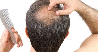 saç dökülmesi nedenleri, saç dökülmesine karşı önlemler, saç neden dökülür