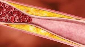 yüksek kolesterol, yüksek kolesterol nedenleri, yüksek kolesterol belirtisi