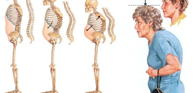 ankilozan spondilitin ne demek, ankilozan spondilitin nedir, ankilozan spondilitin belirtileri